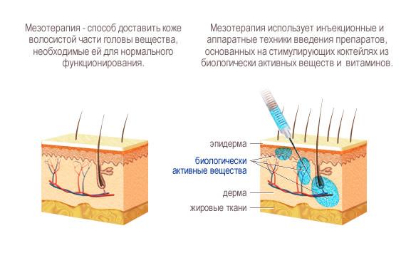 Сделать мезотерапию для волос