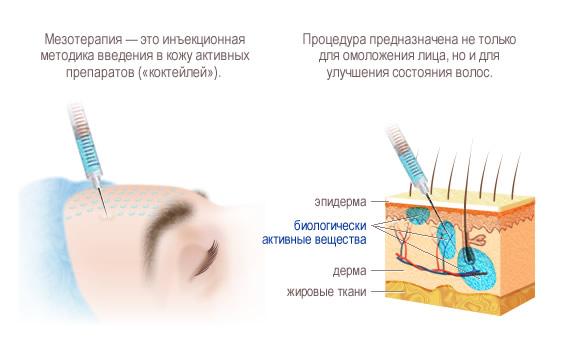 Методика мезотерапии для кожи на лице
