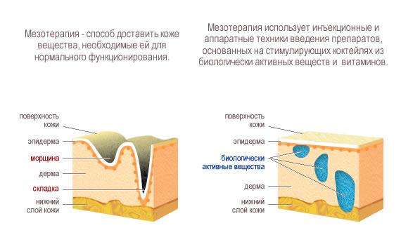 Сделать мезотерапию для тела