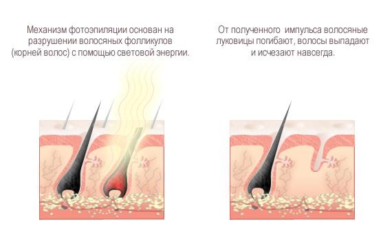 Фотоэпиляция арбат лазерная эпиляция миасс