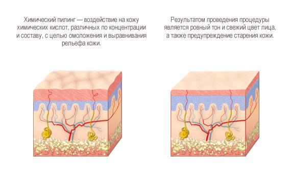 Пигментные пятна на лице  Отзывы и цены  Пигментация