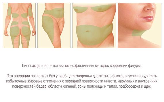 как убрать внутренний жировик на спине