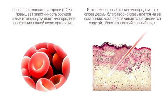 Причины псориаза по луизе хей