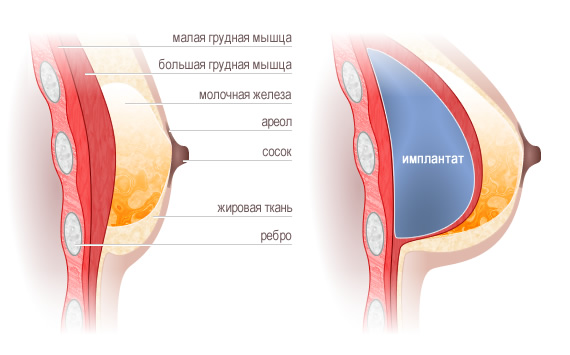 Опреция по увеличению груди москве