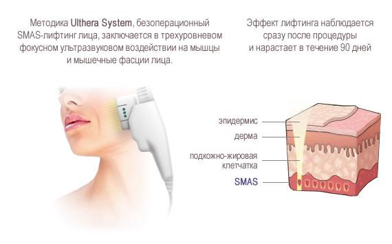 Ultherapy в москве цена саратов пластическая хирургия